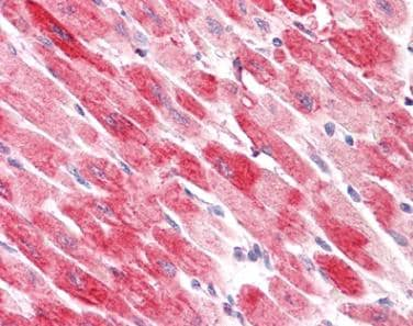 Immunohistochemistry (Formalin/PFA-fixed paraffin-embedded sections) - Anti-Cofilin 2 antibody - C-terminal (ab179935)