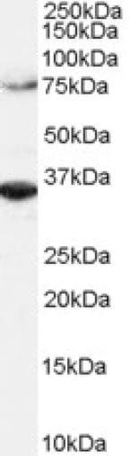 Western blot - Anti-ORC3 antibody - C-terminal (ab179936)