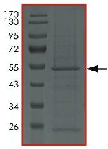 SDS-PAGE - Recombinant Human Protein kinase Y linked  (ab179953)
