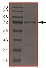 SDS-PAGE - Recombinant human CIT protein (ab179954)