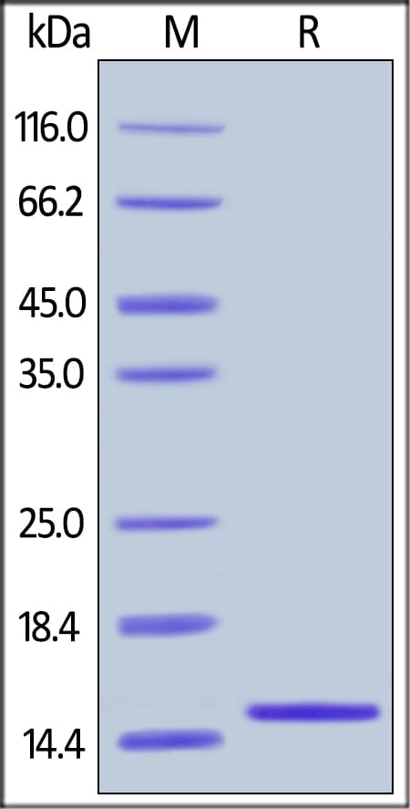 SDS-PAGE - Recombinant human I-FABP protein (ab179974)