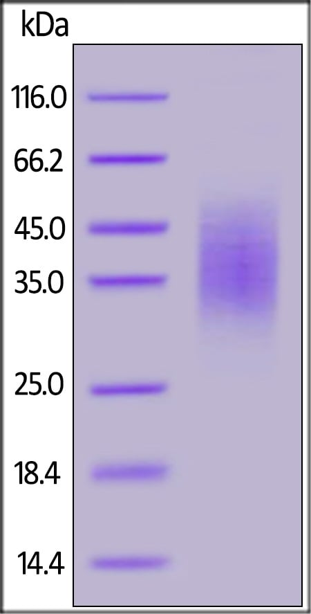SDS-PAGE - Recombinant human CD58 protein (ab179975)