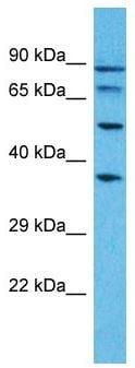 Western blot - Anti-PUS7L antibody - N-terminal (ab179996)