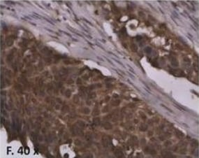Immunohistochemistry (Formalin/PFA-fixed paraffin-embedded sections) - Anti-Transcription factor AP-2-alpha antibody [AP2a 8G8/5] (ab18112)