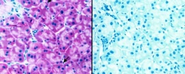 Immunohistochemistry (Formalin/PFA-fixed paraffin-embedded sections) - Anti-ABCA1 antibody [AB.H10] (ab18180)