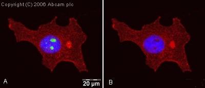 Immunocytochemistry/ Immunofluorescence - Anti-hnRNP K antibody (ab18195)
