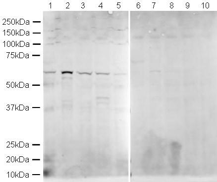 Western blot - Anti-hnRNP K antibody (ab18195)