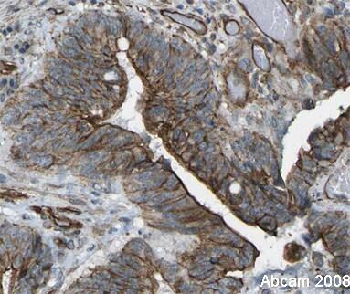 Immunohistochemistry (Formalin/PFA-fixed paraffin-embedded sections) - Anti-FOXK1/MNF antibody (ab18196)