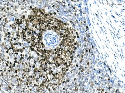 Immunohistochemistry (Formalin/PFA-fixed paraffin-embedded sections) - Anti-PCNA antibody (ab18197)