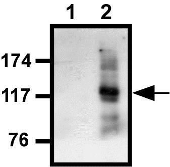 Western blot - Anti-CaSR antibody (ab18200)
