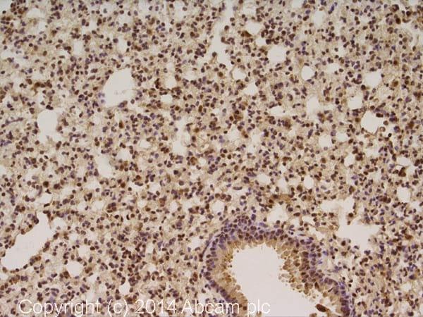 Immunohistochemistry (Formalin/PFA-fixed paraffin-embedded sections) - Anti-AKT1 (phospho S473) antibody (ab18206)