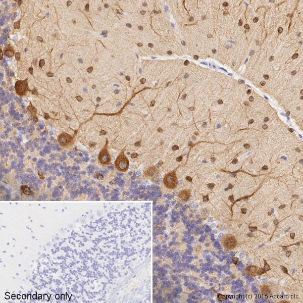 Immunohistochemistry (Formalin/PFA-fixed paraffin-embedded sections) - Anti-beta III Tubulin antibody - Neuronal Marker (ab18207)