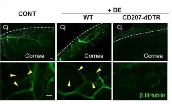 IHC - Wholemount - Anti-beta III Tubulin antibody - Neuronal Marker (ab18207)