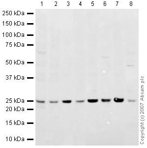 Western blot - Anti-Rab5 antibody - Early Endosome Marker (ab18211)
