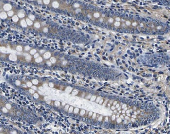 Immunohistochemistry (Formalin/PFA-fixed paraffin-embedded sections) - Anti-alpha Tubulin antibody (ab18251)