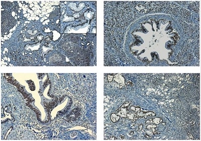 Immunohistochemistry (Formalin/PFA-fixed paraffin-embedded sections) - Anti-HMGB1 antibody - ChIP Grade (ab18256)