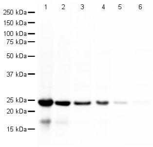 Western blot - Anti-PARK7/DJ1 antibody (ab18257)
