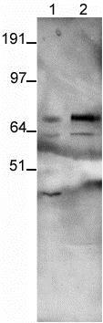 Immunoprecipitation - Anti-PSD95 antibody (ab18258)
