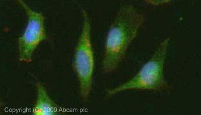 Immunocytochemistry/ Immunofluorescence - Anti-LAMP2A antibody (ab18528)