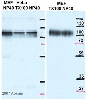 Western blot - Anti-LAMP2A antibody - Lysosome Marker (ab18528)