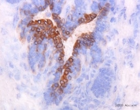 Immunohistochemistry (Frozen sections) - Anti-Cytokeratin 6 antibody [Ks6.KA12] (ab18586)