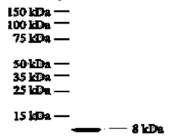 Western blot - Anti-IL-8 antibody [807] (ab18672)