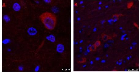 Immunocytochemistry/ Immunofluorescence - Anti-Choline Acetyltransferase antibody (ab18736)
