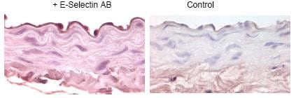 Immunohistochemistry (Formalin/PFA-fixed paraffin-embedded sections) - Anti-CD62E antibody (ab18981)