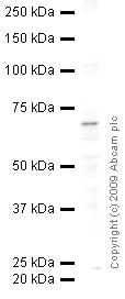 Western blot - Anti-CD62E antibody (ab18981)