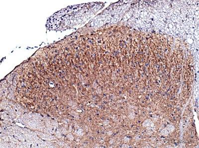 Immunohistochemistry (Formalin/PFA-fixed paraffin-embedded sections) - Anti-TrkB antibody (ab18987)
