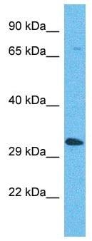 Western blot - Anti-OR5AP2 antibody - C-terminal (ab180004)