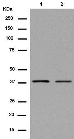Western blot - Anti-CREB3 antibody [EPR14215(B)] (ab180119)