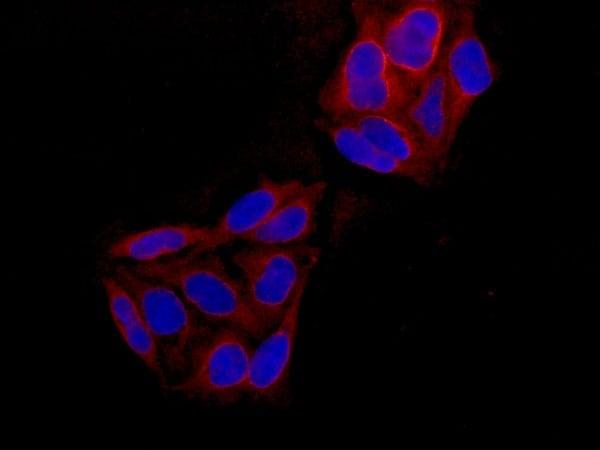 Immunocytochemistry/ Immunofluorescence - Anti-Peroxiredoxin 5 antibody [EPR14528(B)] (ab180123)