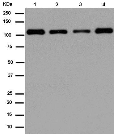 Western blot - Anti-E1 Ubiquitin Activating Enzyme 1/UBA1 antibody [EPR14203(B)] (ab180125)