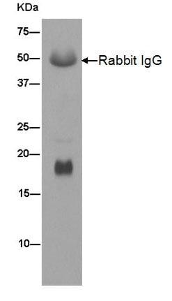 Immunoprecipitation - Anti-PLP2 antibody [EPR14238(B)] (ab180131)