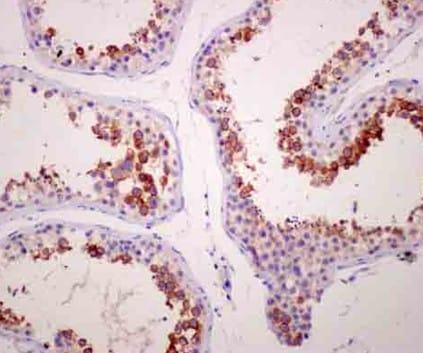 Immunohistochemistry (Formalin/PFA-fixed paraffin-embedded sections) - Anti-TPTE antibody [EPR11867(2)] - N-terminal (ab180137)