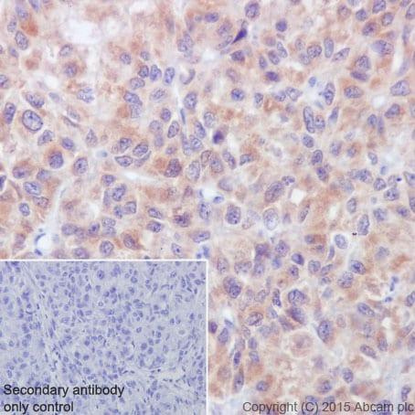 Immunohistochemistry (Formalin/PFA-fixed paraffin-embedded sections) - Anti-ATP5G1/G2/G3 antibody [EPR13908] (ab180149)