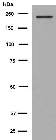 Western blot - Anti-KIF1A antibody [EPR11790(B)] (ab180153)