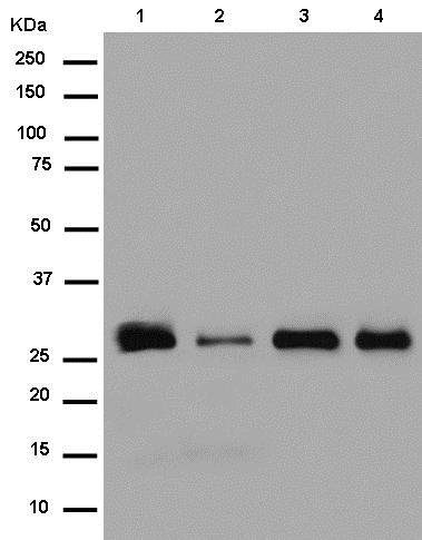 Western blot - Anti-PLEKHB2 antibody [EPR14019] - C-terminal (ab180156)