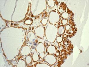 Immunohistochemistry (Formalin/PFA-fixed paraffin-embedded sections) - Anti-MRPL4 antibody [EPR13151] (ab180165)