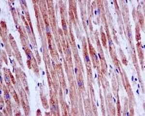 Immunohistochemistry (Formalin/PFA-fixed paraffin-embedded sections) - Anti-NUDT19 antibody [EPR13162-63] (ab180166)