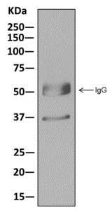 Immunoprecipitation - Anti-Tropomyosin 2 antibody [EPR12846] - C-terminal (ab180176)