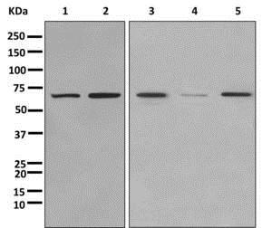 Western blot - Anti-C17orf66 antibody [EPR12894] (ab180178)