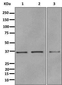 Western blot - Anti-Annexin A10/ANXA10 antibody [EPR13101] (ab180182)