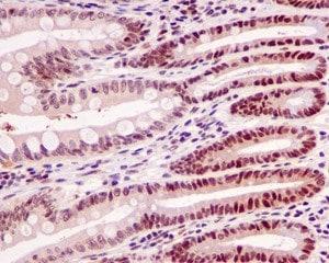 Immunohistochemistry (Formalin/PFA-fixed paraffin-embedded sections) - Anti-MLF2 antibody [EPR10245(2)] - C-terminal (ab180184)