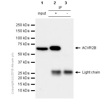 Immunoprecipitation - Anti-Activin Receptor Type IIB/ACVR2B antibody [EPR10739] (ab180185)