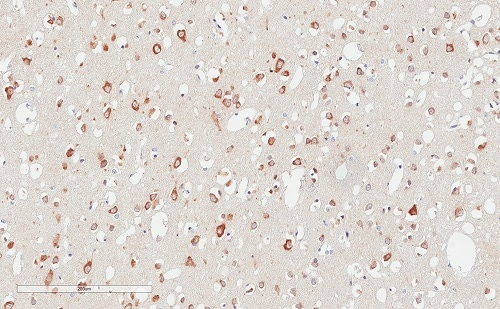 Immunohistochemistry (Formalin/PFA-fixed paraffin-embedded sections) - Anti-LAG-3 antibody [EPR4392(2)] - C-terminal (ab180187)