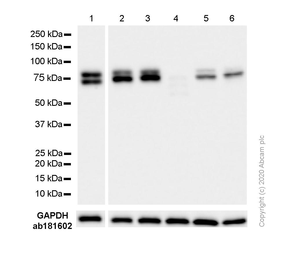 Western blot - Anti-DDX17 antibody [EPR13807(B)] - C-terminal (ab180190)
