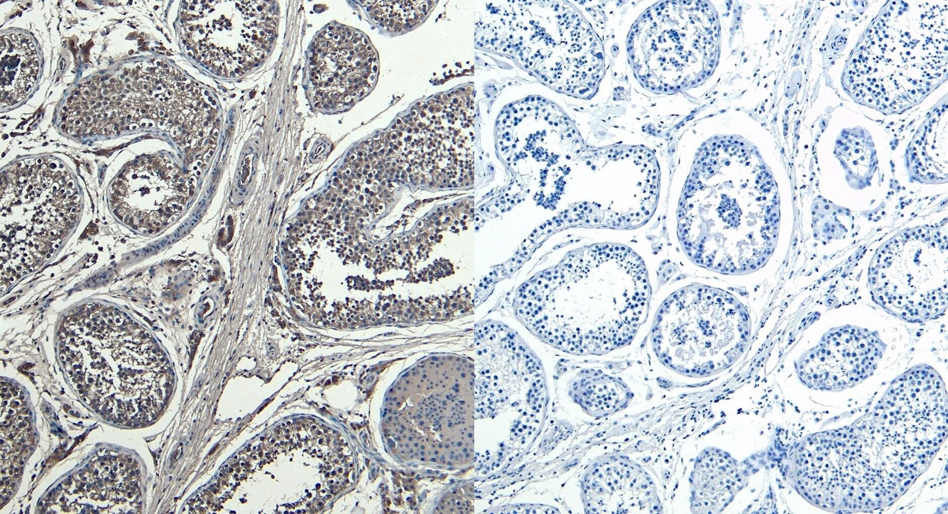 Immunohistochemistry (Formalin/PFA-fixed paraffin-embedded sections) - Anti-HOXA10 antibody (ab180222)