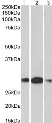 Western blot - Anti-HOXA5 antibody (ab180229)